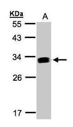 NBP1-32466 - IFI30 / GILT