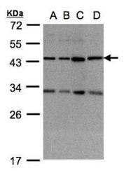 NBP1-32472 - DNAJC17
