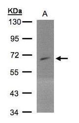 NBP1-32477 - PIP5K1A