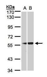 NBP1-32478 - SERPING1 / C1 Inhibitor
