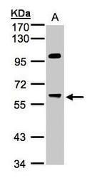 NBP1-32480 - PPP1R16A / MYPT3