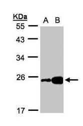 NBP1-32482 - FABP6