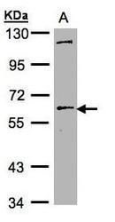 NBP1-32489 - NR5A2 / CPF