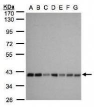 NBP1-32499 - SLC25A33 / PNC1