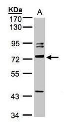 NBP1-32505 - Amphiphysin