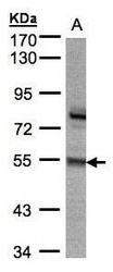 NBP1-32507 - ZNF165