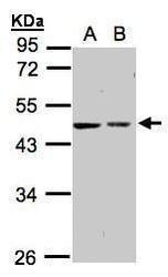NBP1-32508 - Galactokinase 2