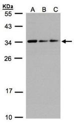 NBP1-32511 - Nuclear protein Hcc-1