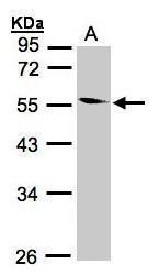 NBP1-32514 - Coronin-1B