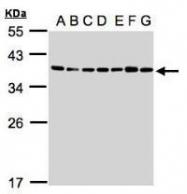 NBP1-32515 - U2AF1 / U2AF35