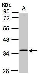 NBP1-32516 - RG9MTD3