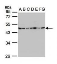 NBP1-32521 - SUCLG2