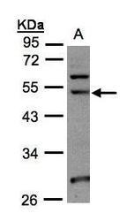 NBP1-32531 - NSUN6