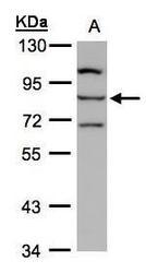 NBP1-32533 - ALOXE3