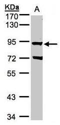 NBP1-32534 - Beta-ARK-1 / ADRBK1