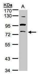 NBP1-32535 - PRKCG