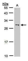 NBP1-32543 - ZMAT3