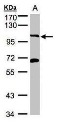 NBP1-32545 - PIK3C3