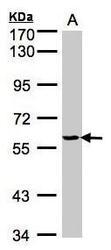 NBP1-32551 - YARS