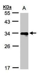 NBP1-32553 - HLA Class II DR beta 4 / HLA-DRB4