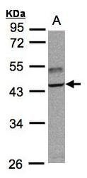 NBP1-32556 - TRAF1 / EBI6
