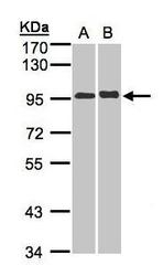 NBP1-32558 - IL12RB2