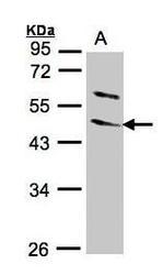 NBP1-32562 - WNT10B