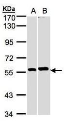 NBP1-32567 - PPP3CB / CALNA2