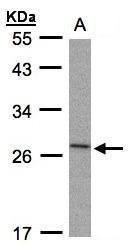 NBP1-32568 - IL1RN /  IL1RA