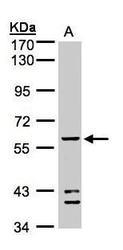 NBP1-32569 - ALDH5