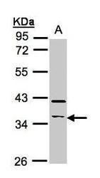 NBP1-32571 - RASSF2