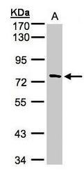 NBP1-32574 - TTC30A