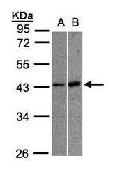 NBP1-32575 - MBNL3