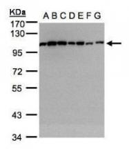 NBP1-32578 - Alpha-actinin-1 / ACTN1