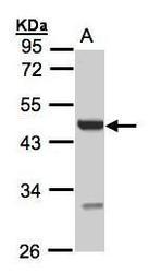 NBP1-32585 - UST / DS2ST