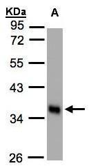 NBP1-32588 - Scramblase 1 / PLSCR1