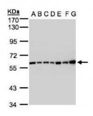 NBP1-32589 - Complement C2