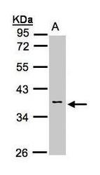NBP1-32594 - Calsequestrin-2