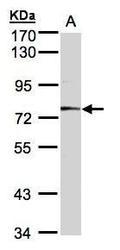 NBP1-32595 - Meprin A alpha