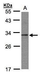 NBP1-32596 - C20orf11