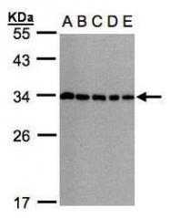 NBP1-32597 - CHMP5