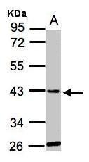 NBP1-32600 - GLYATL1 / GNAT