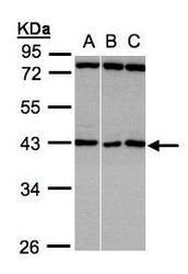 NBP1-32603 - ASB5