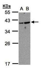 NBP1-32606 - ARL14 / ARF7