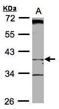 NBP1-32608 - BHMT2