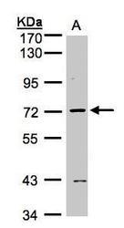 NBP1-32621 - L3MBTL2