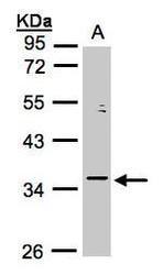 NBP1-32622 - GTF2B