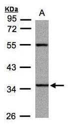 NBP1-32638 - PANK3