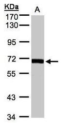 NBP1-32649 - CoA synthase