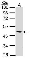 NBP1-32652 - BCAT2